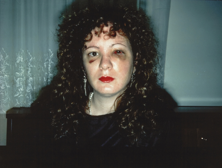 NAN GOLDIN (*1953) 'Nan one month after being battered', 1984 Starting price: 3.600 € / estimate: € 6.000–8.000