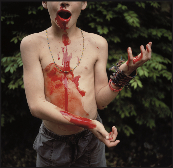 Sally Mann (American, born 1951), Bloody Nose, 1991, silver dye bleach print, Private collection © Sally Mann